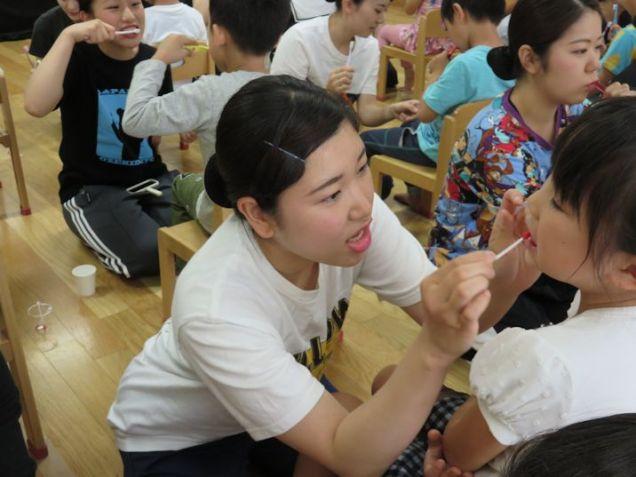 歯垢の染め出しを行い、磨き残しのチェックをします。